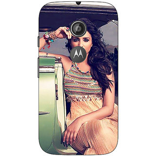 1 Crazy Designer Bollywood Superstar Parineeti Chopra Back Cover Case For Moto E2 C651062