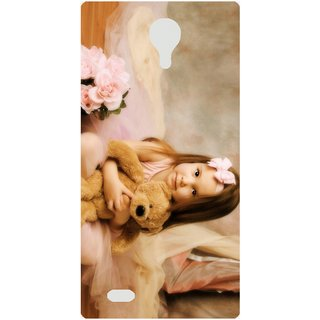 Amagav Back Case Cover for HTC One X9 559OneX9