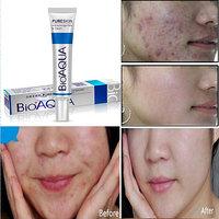 BioAQUA Anti-Acne Top Treatment, Pimple  Scar Removal Clean  Clear Skin Cream