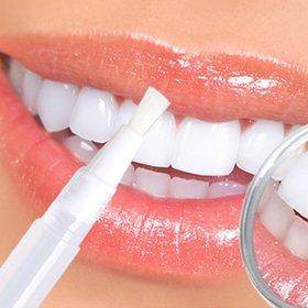 Transparent White Teeth High Strength Whitening Gel Pen 2ml Whitener Tooth Pen Dental Equipment