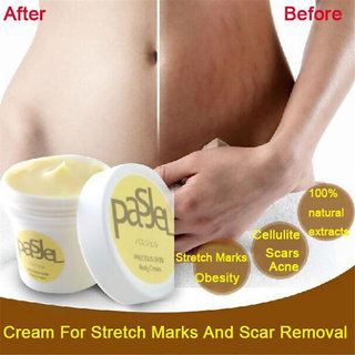 Thailand Pasjel precious Skin Body Cream stretch marks remover scar removal powerful postpartum obesity pregnancy