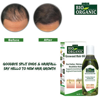 Herbal Hair Regrowth Oil-Hair Oil Hair Growth-Regrowth Treatment-Anti Hair Fall Solution