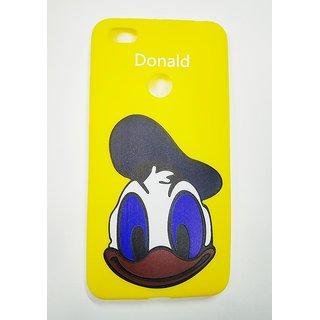OGW REDMI Y1 -  cartoon soft  back case cover yellow